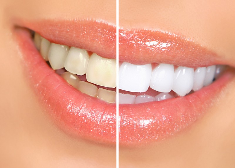 teeth whitening services Bedford, NH